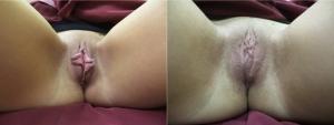 labia-majora-labia-minora-mons-pubis1