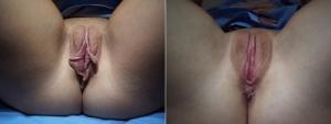 labia-minora-clitoral-hood5